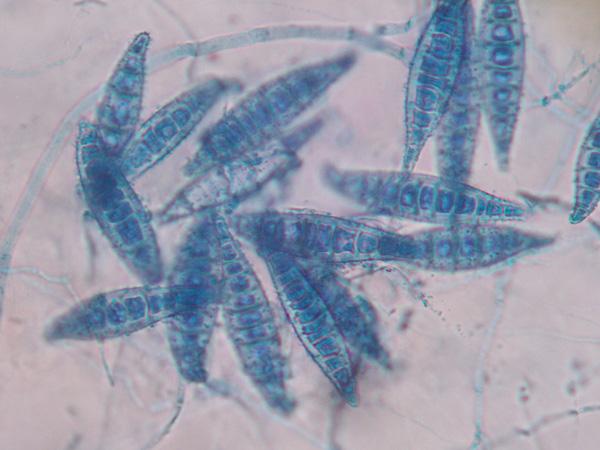 Microsporum_canis (CC)